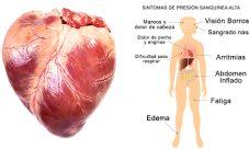 Causas de la presión arterial alta